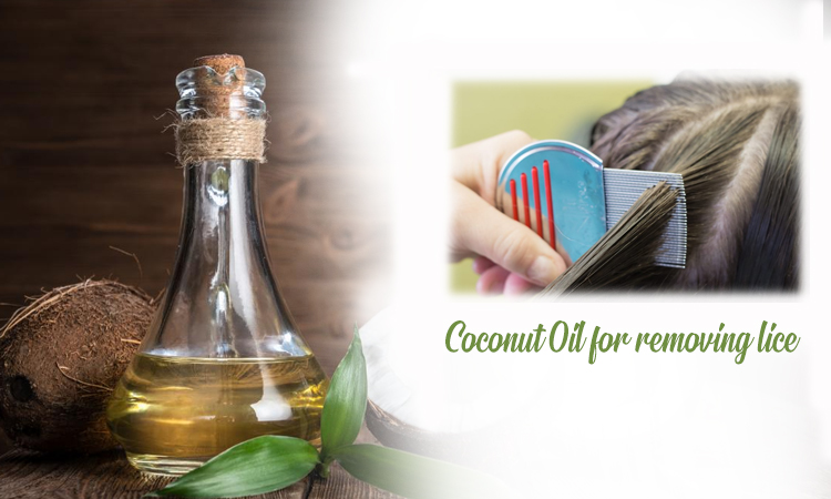 Coconut Oil for Removing Lice
